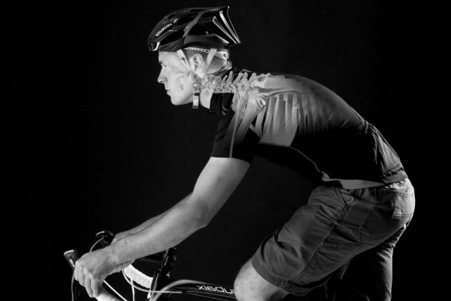 Cervical neck pain in cycling